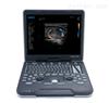 SIUI国产优质超声彩超 Apogee 3800