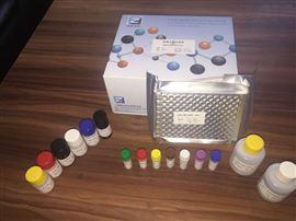可溶性鸟苷酸环化酶B1进口试剂盒