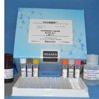 小肠结肠炎耶尔森菌PCR检测试剂盒供应商